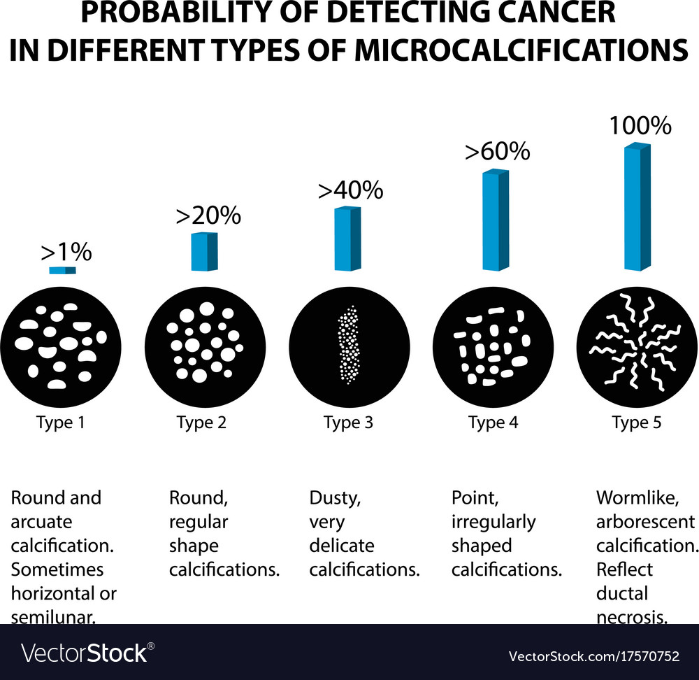Breast cancer different types microcalcinates vector image