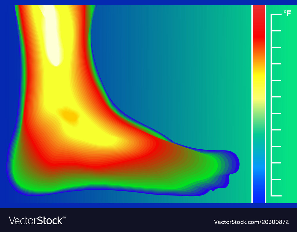 Human leg infrared thermograph with temperature