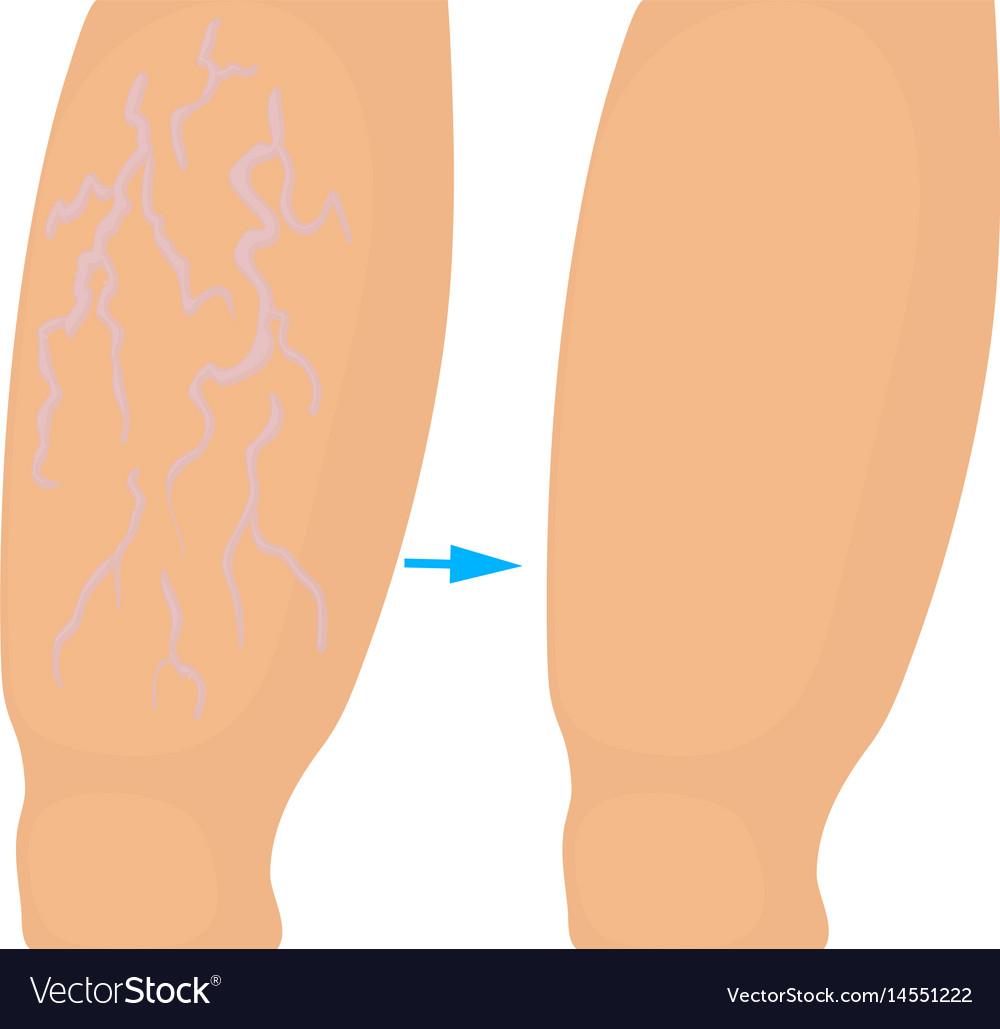 operațiunea internă varicosera