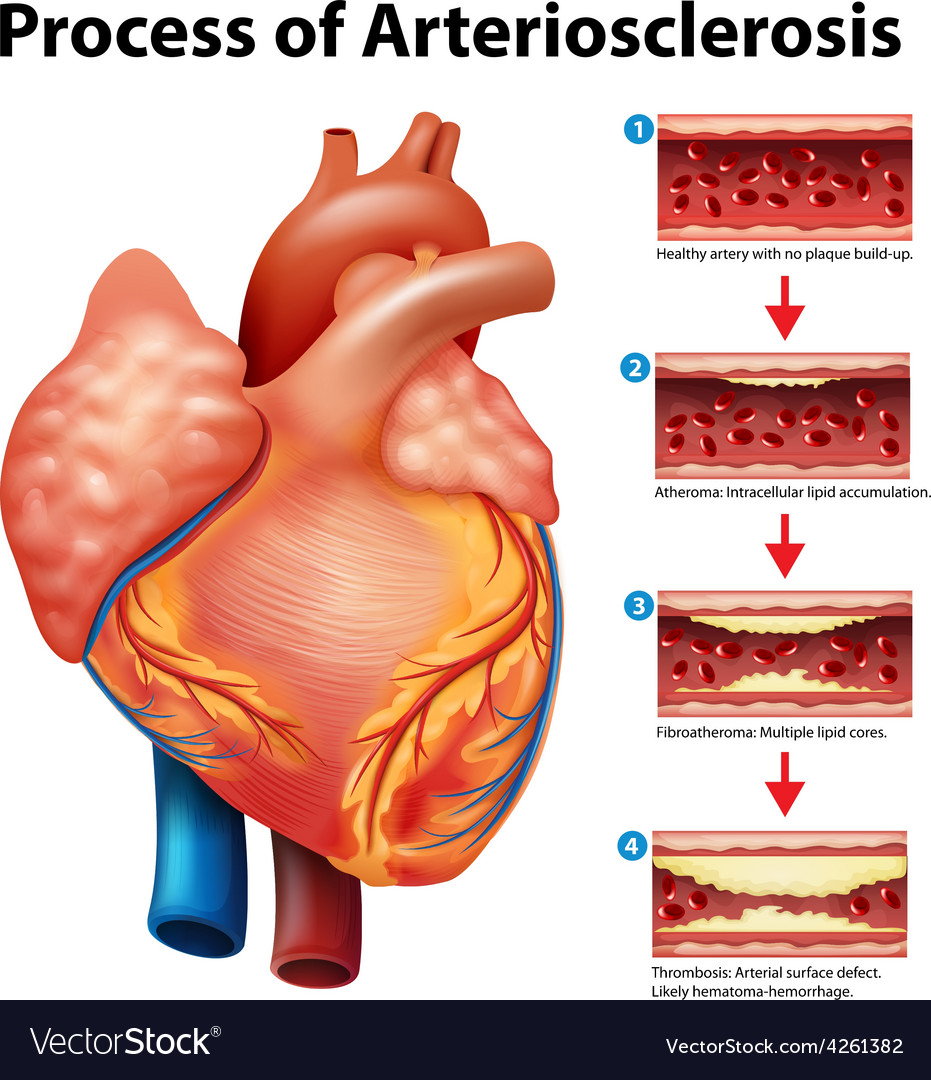 Process of Arteriosclerosis Royalty Free Vector Image