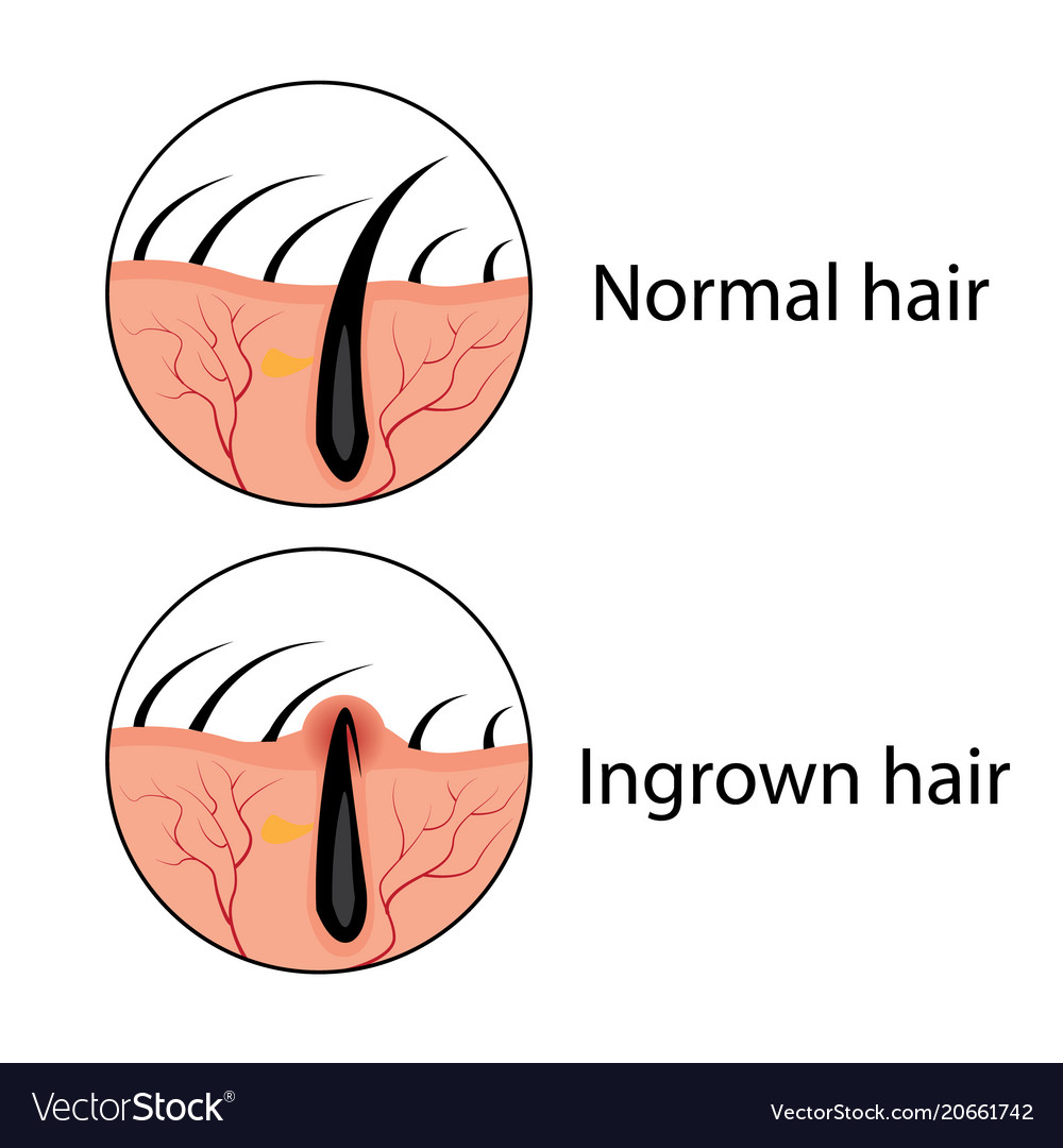 Normal And Ingrown Hair Royalty Free Vector Image