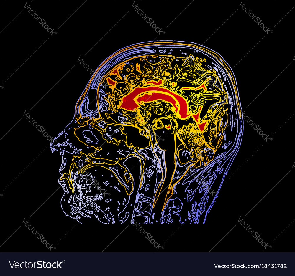 Topographic Map Mri Of The Human Brain Royalty Free Vector