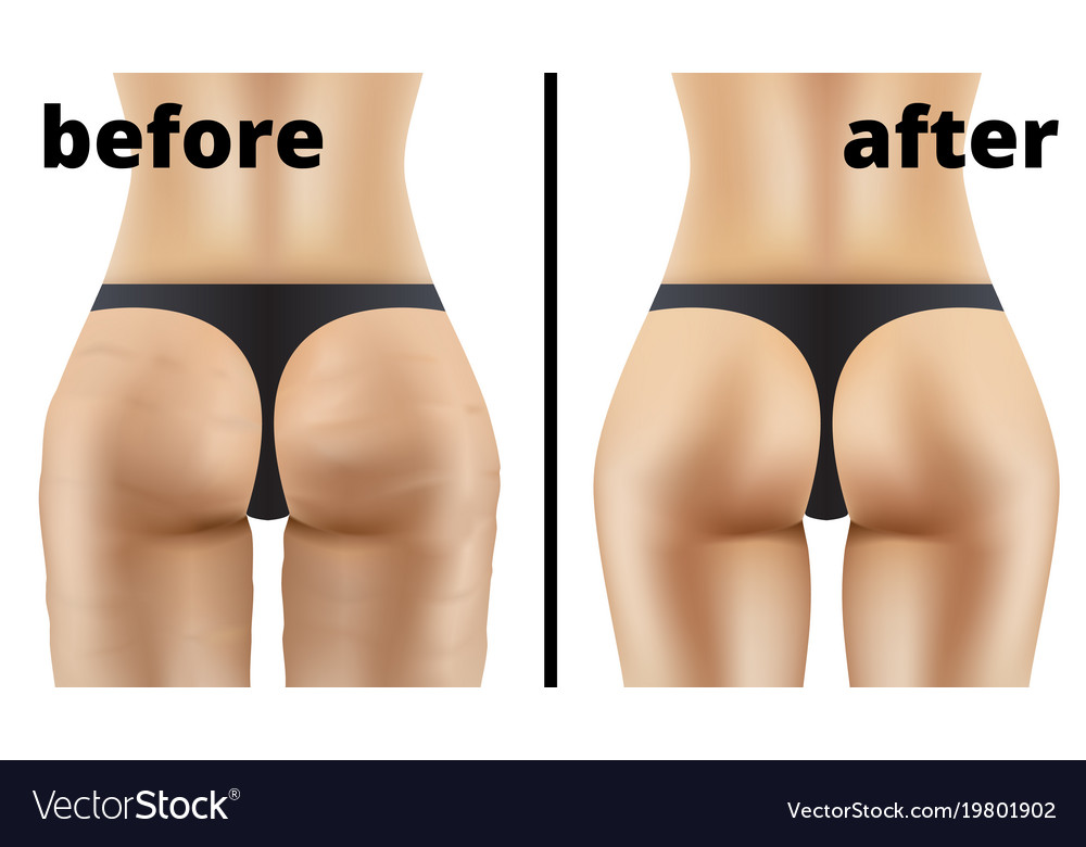 cellulite ass pics