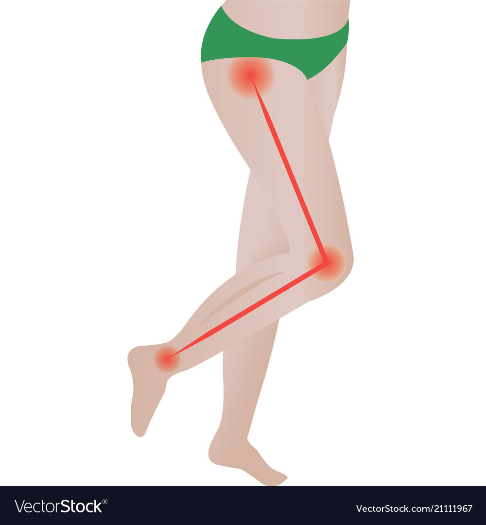Joint Pain Sciatic Nerve Sciatic Back Pain Vector Image