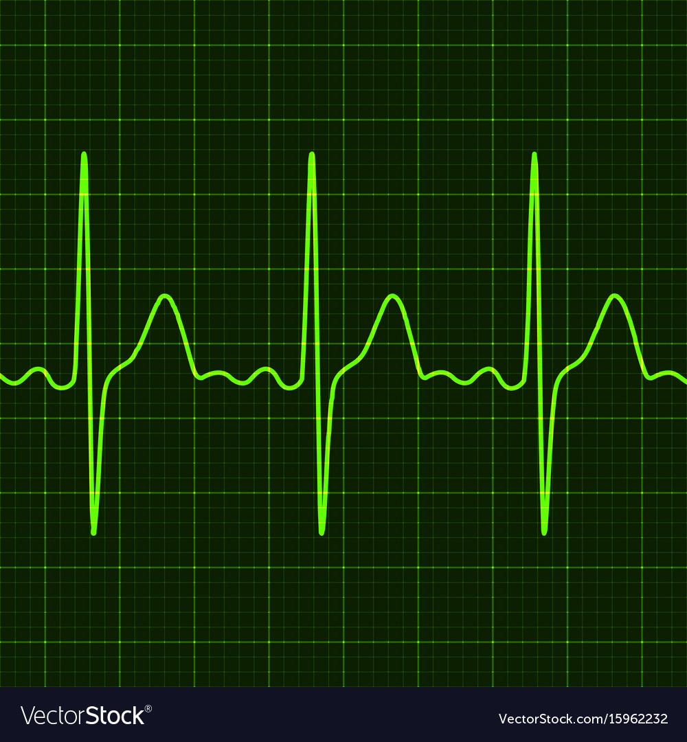 cardiogram-on-digital-device-monitor-vec