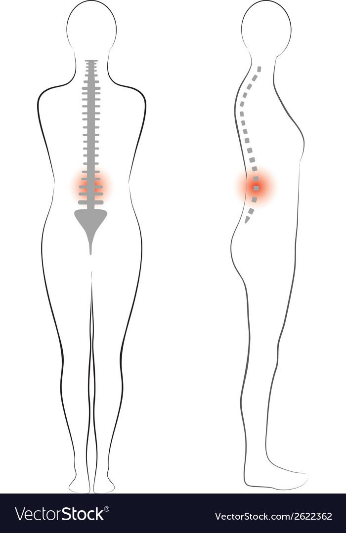 Woman body shape vertebrae pain Royalty Free Vector Image