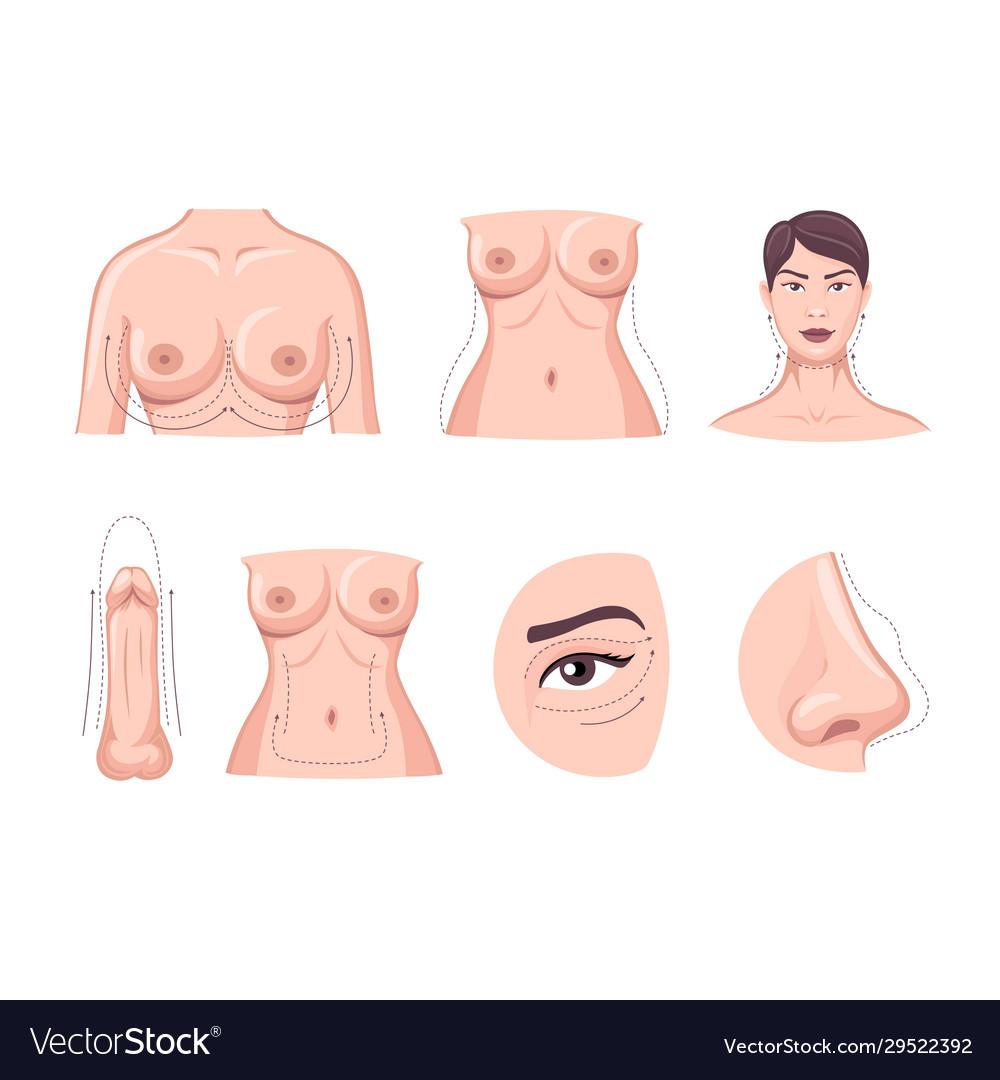 Collection cartoon plastic surgery body part