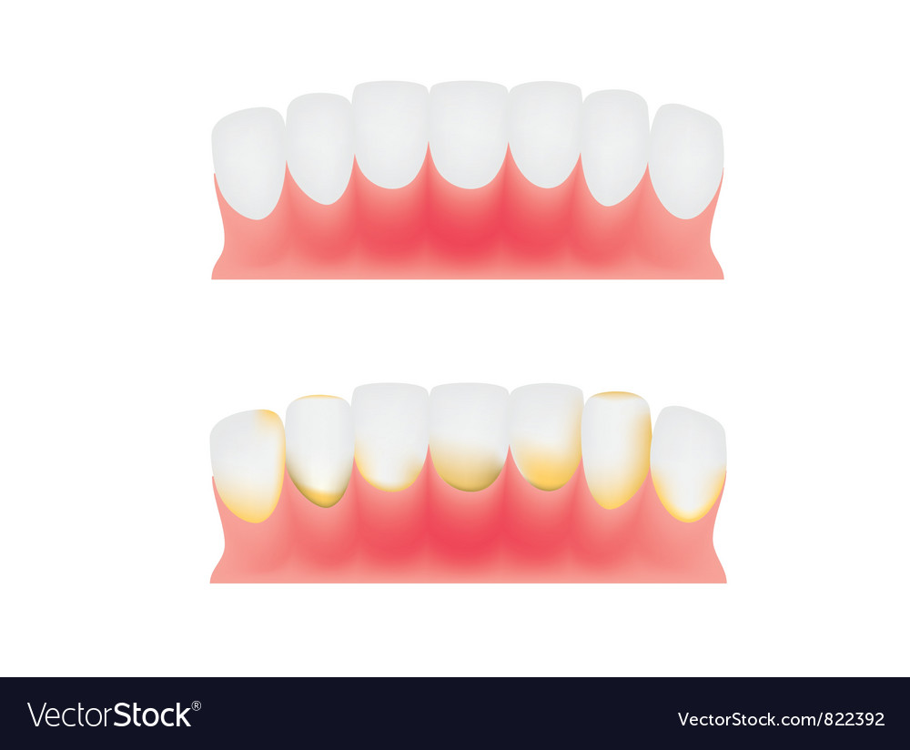 Teeth and gums Royalty Free Vector Image - VectorStock