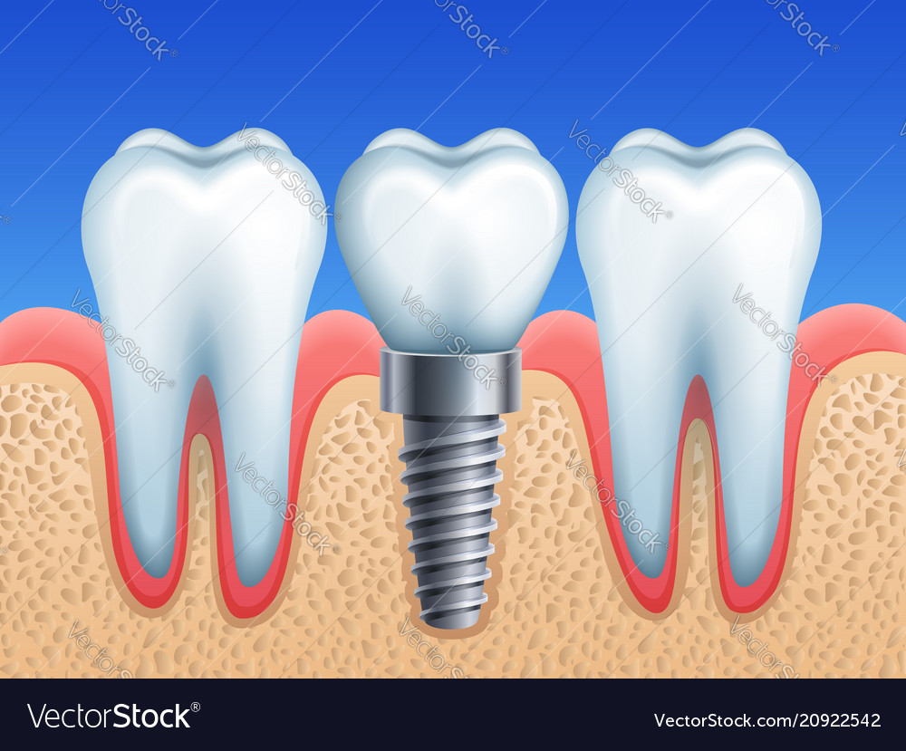 Dental Implant And Teeth Royalty Free Vector Image