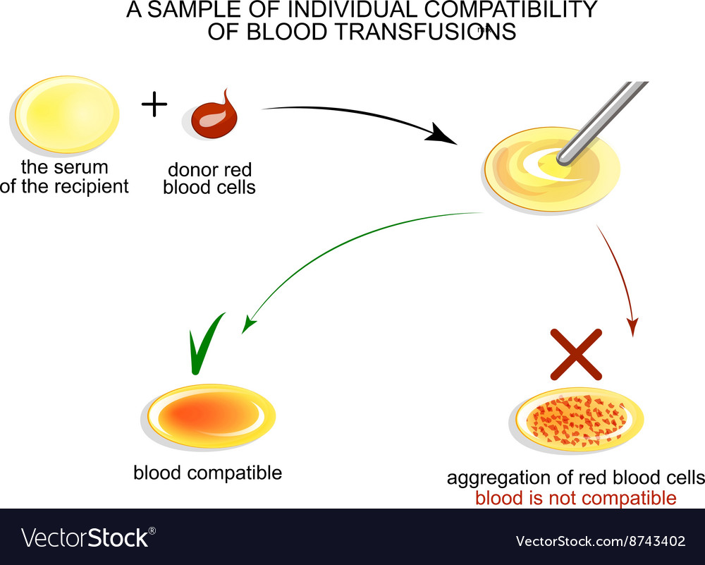 Test on individual blood compatibility