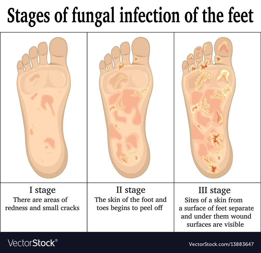 Fungal Infection On The Feet Royalty Free Vector Image