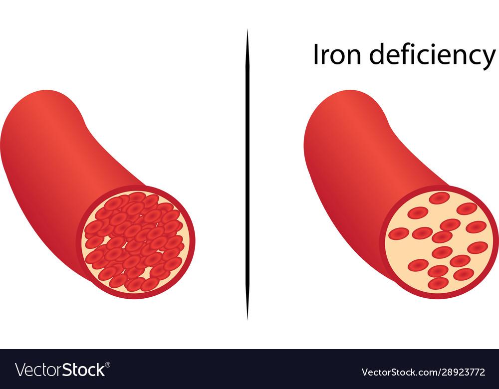 anemia yellow skin ce medicamente pot curăța corpul de paraziți
