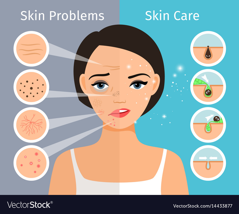 Female head with skin problems solution vector image