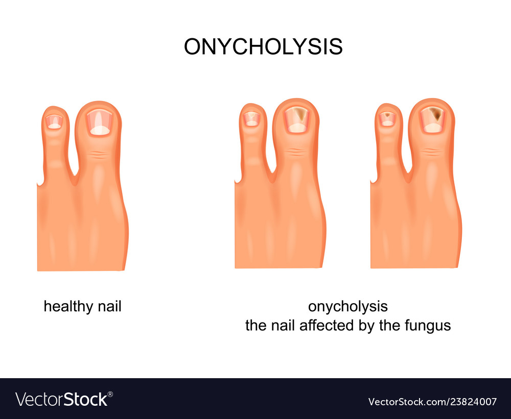 Fungal nail infection onycholysis Royalty Free Vector Image
