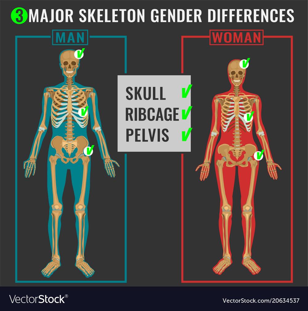 Skeleton differences image