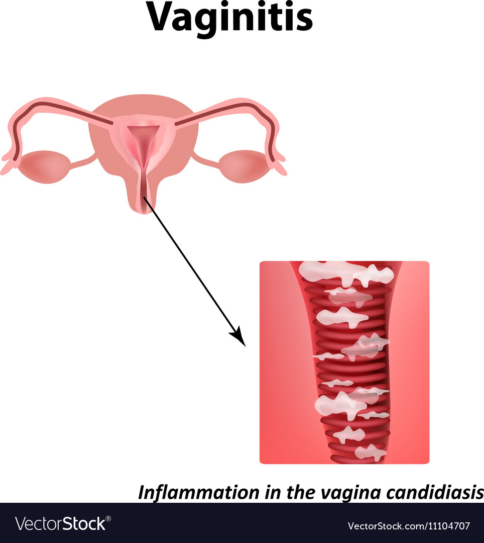 Vaginitis Inflammation in the vagina candidiasis vector image