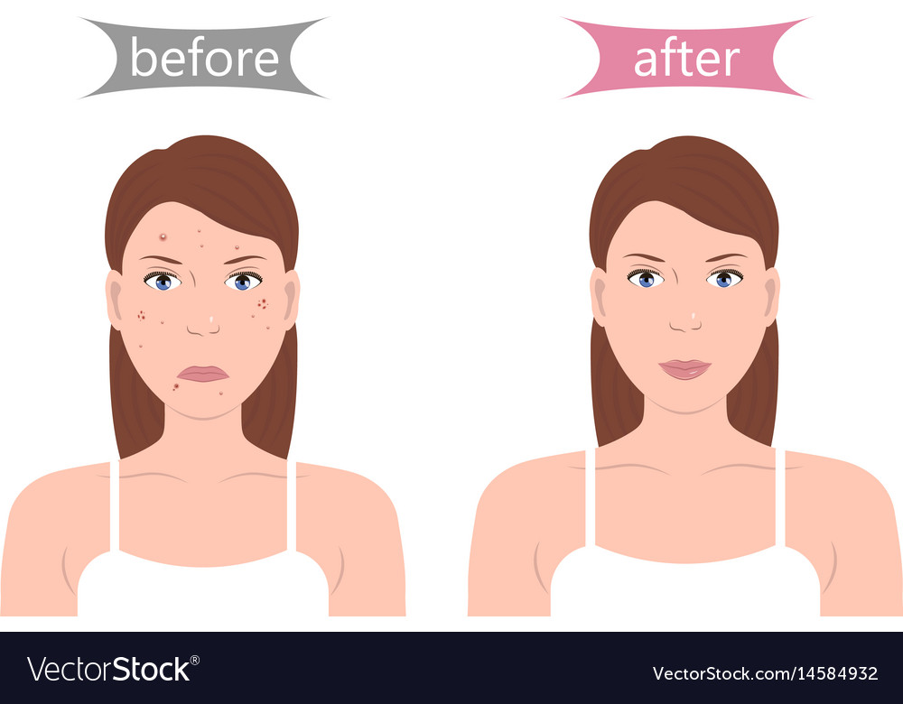 Girl With Acne Before And After Royalty Free Vector Image