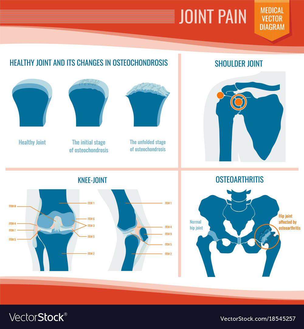 Osteoarthritis and rheumatism joint pain medical