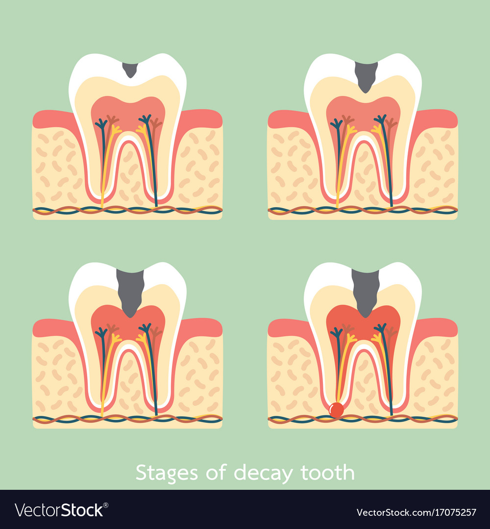 Stages of decay tooth anatomy structure Royalty Free Vector