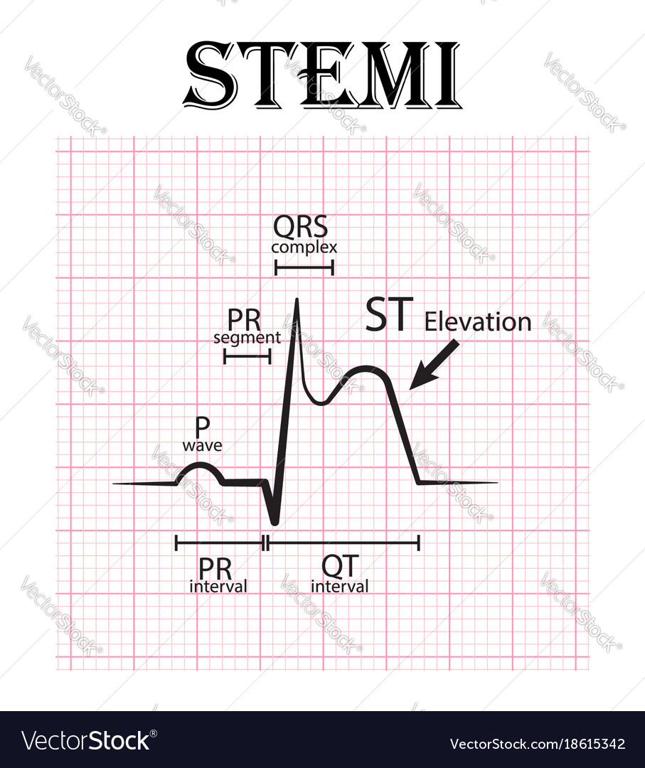 ecg of st elevation myocardial infarction stemi vector image