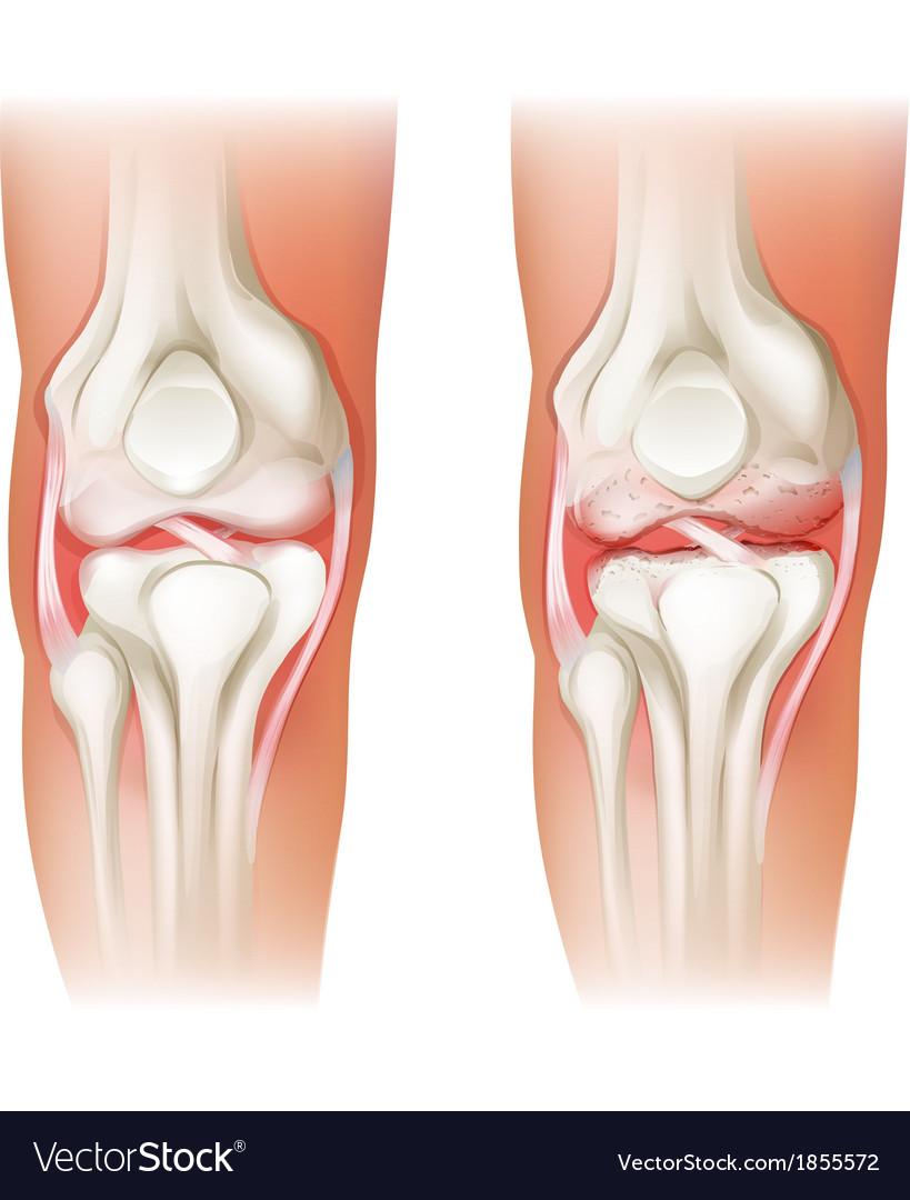 Human knee arthritis