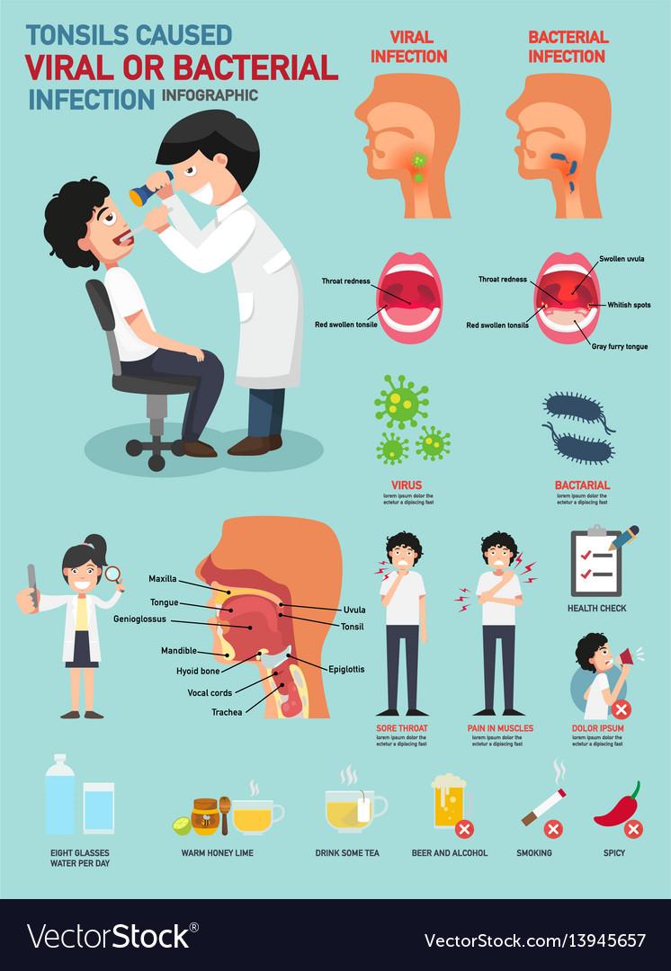 tonsillitis bacterial or viral