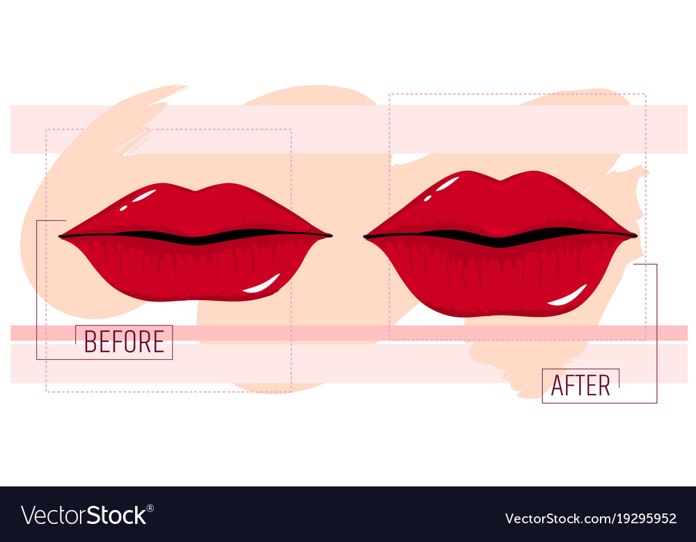 Lip augmentation before and after the cosmetology