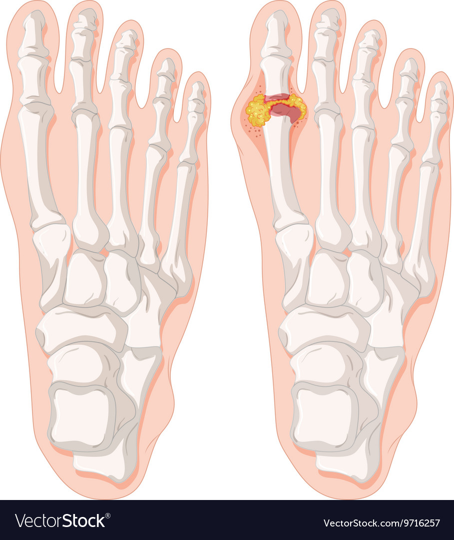 Gout Toe In Human Feet Royalty Free Vector Image