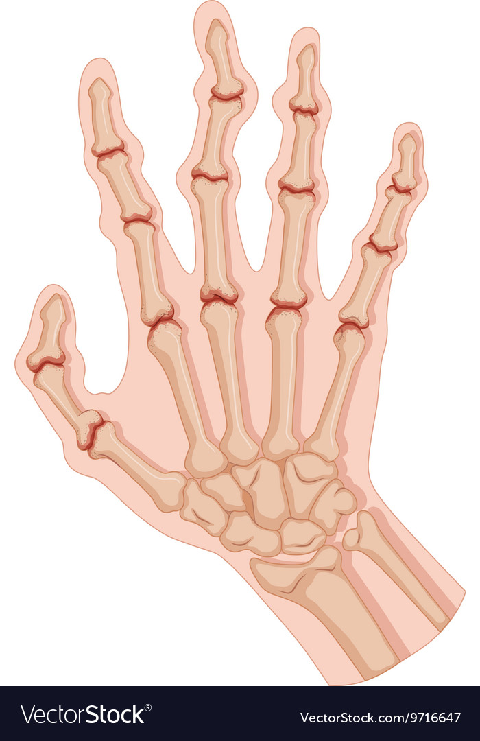 Arthritic Hand Anatomy Diagram - AIO Wiring Diagrams •