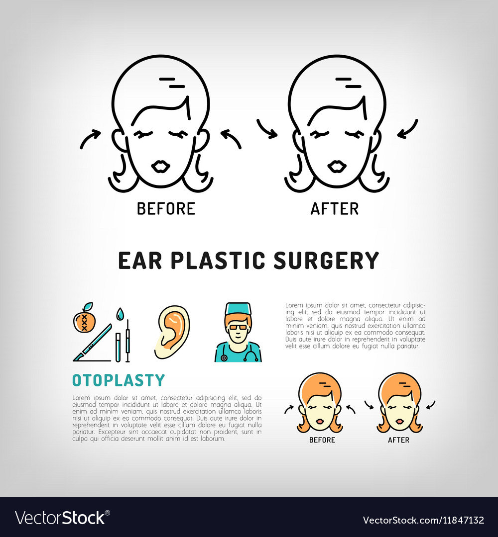 Otoplasty Ear Plastic Surgery logos Face cosmetic