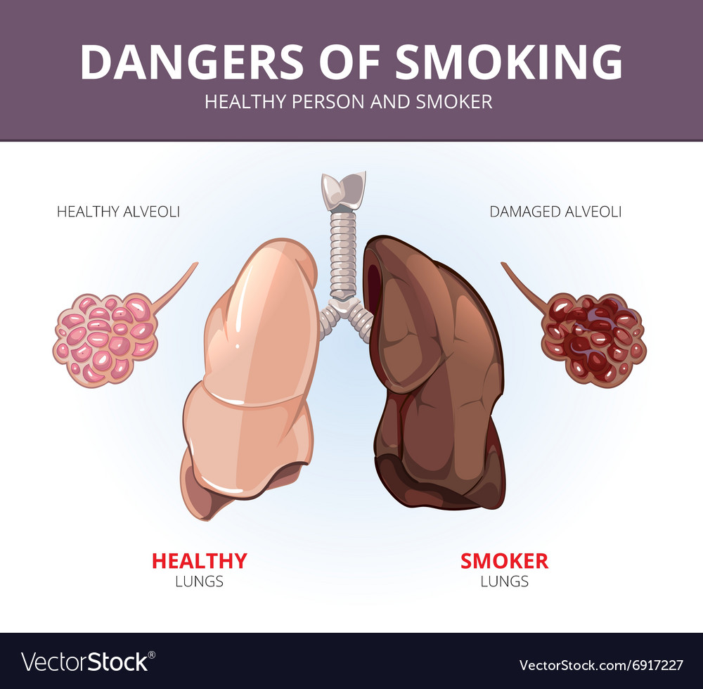 The lungs of a healthy person and the lungs of the smoker: a comparison. Diseases of the lungs from smoking 100