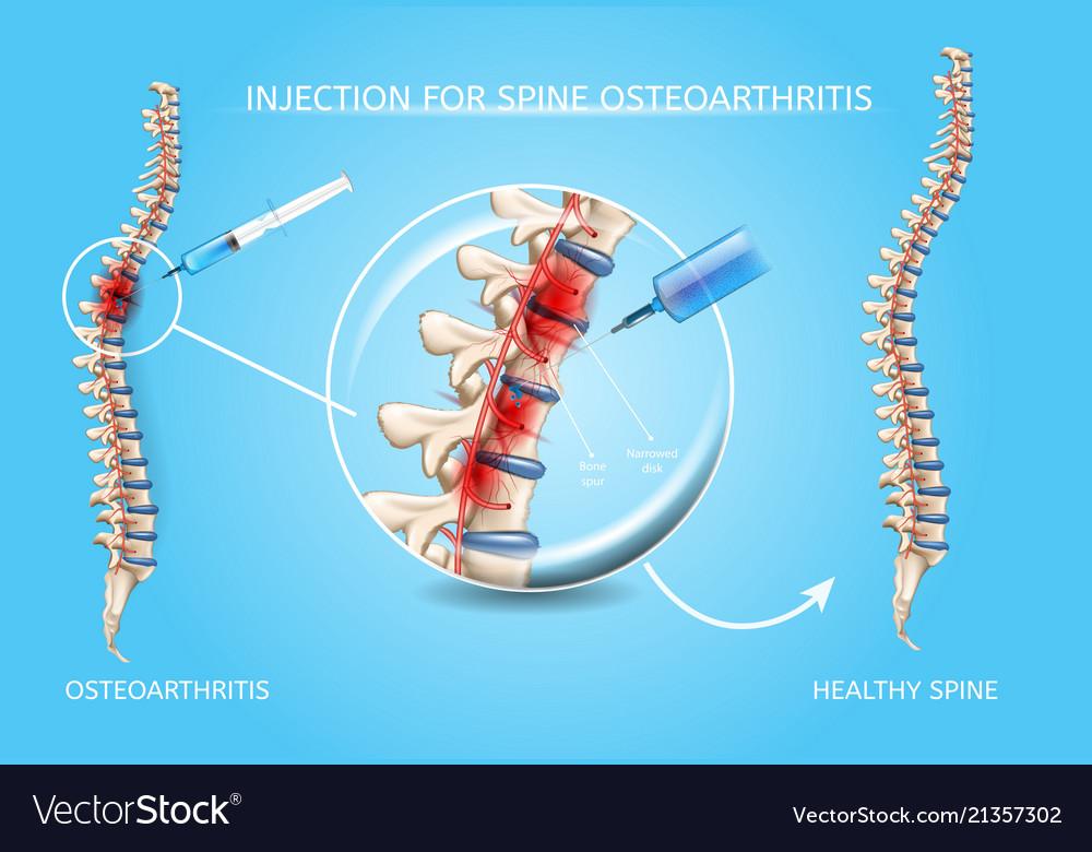 Spine osteoarthritis medical treatment