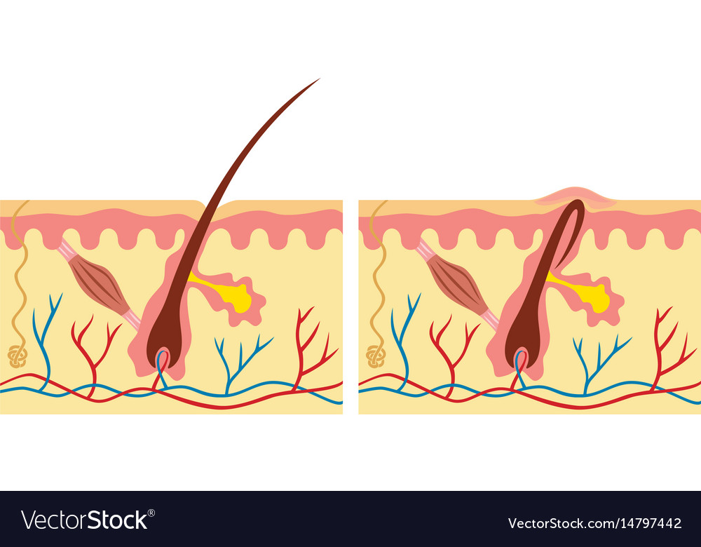 Ingrown And Normal Hair Human Skin Anatomy Vector Image