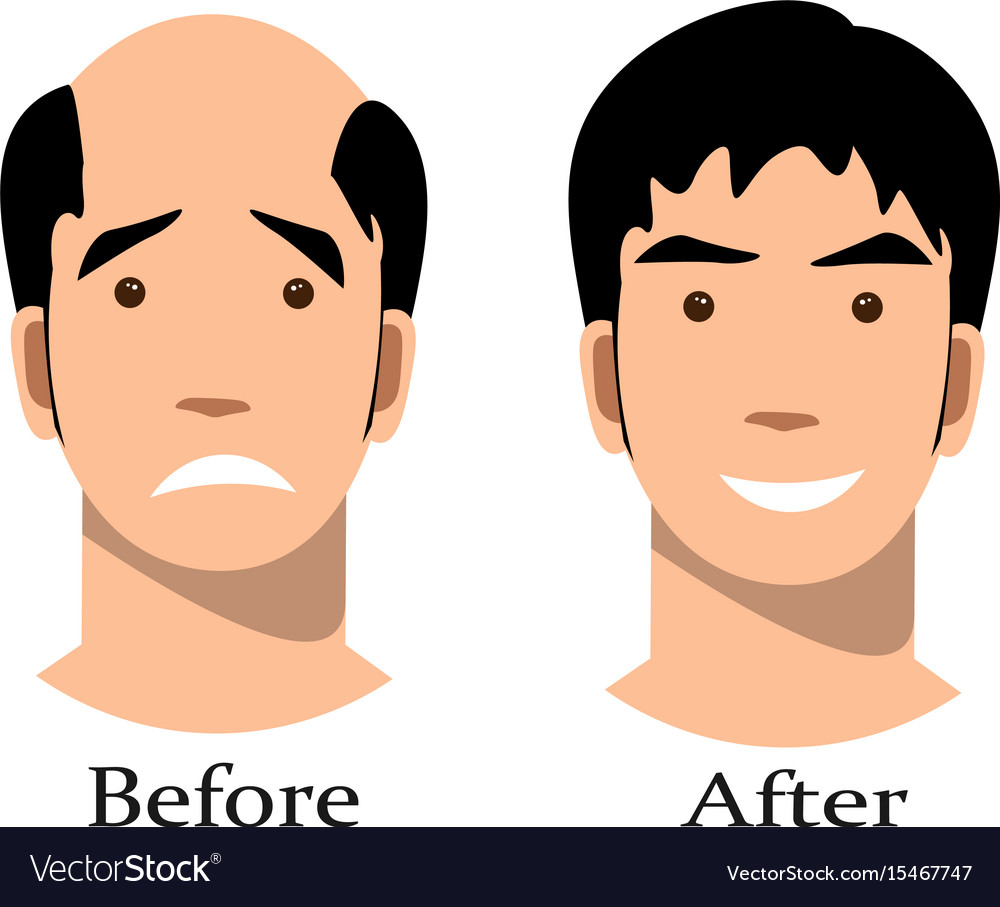 Male Pattern Baldness Stages Best Decoration