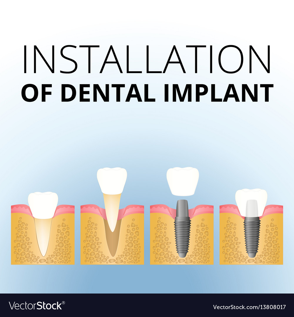 Implantation of the tooth vector image