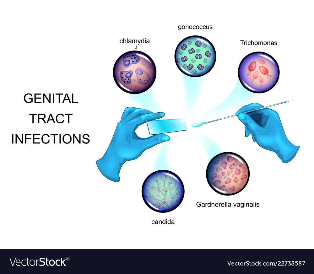 gonococcus a Trichomonas ban