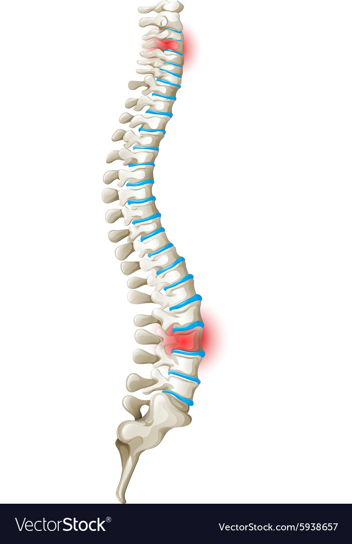 Spine Back Pain Diagram Royalty Free Vector Image