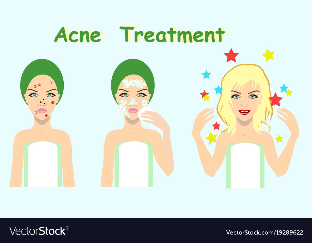 Acne Treatment Before After Skin Problem Solution Vector Image