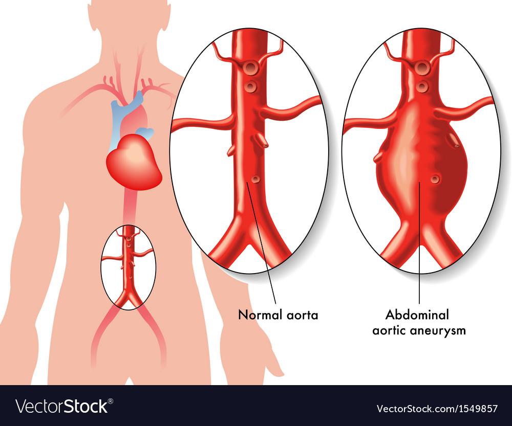 Abdominal aortic aneurysm Royalty Free Vector Image