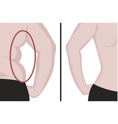 Fat and slim girls back fat waist liposuction vector