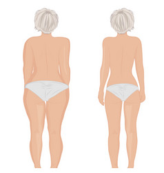 Fat and slim girls back fat thig liposuction vector