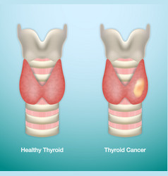 Healthy thyroid and thyroid cancer eps10 vector