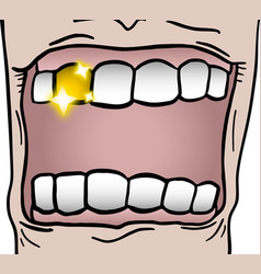 Gold tooth vector