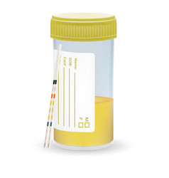 Ph test strips litmus paper and urine in test jar vector