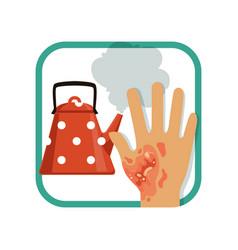 Showing third degree burn hand vector