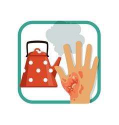 showing third degree burn of hand vector image