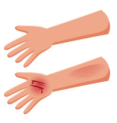 set of injure hand vector image
