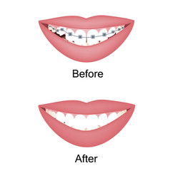 crooked woman teeth before and after the vector image