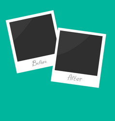 Before after instant photo Flat design vector image