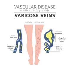 Vascular diseases varicose veins symptoms vector